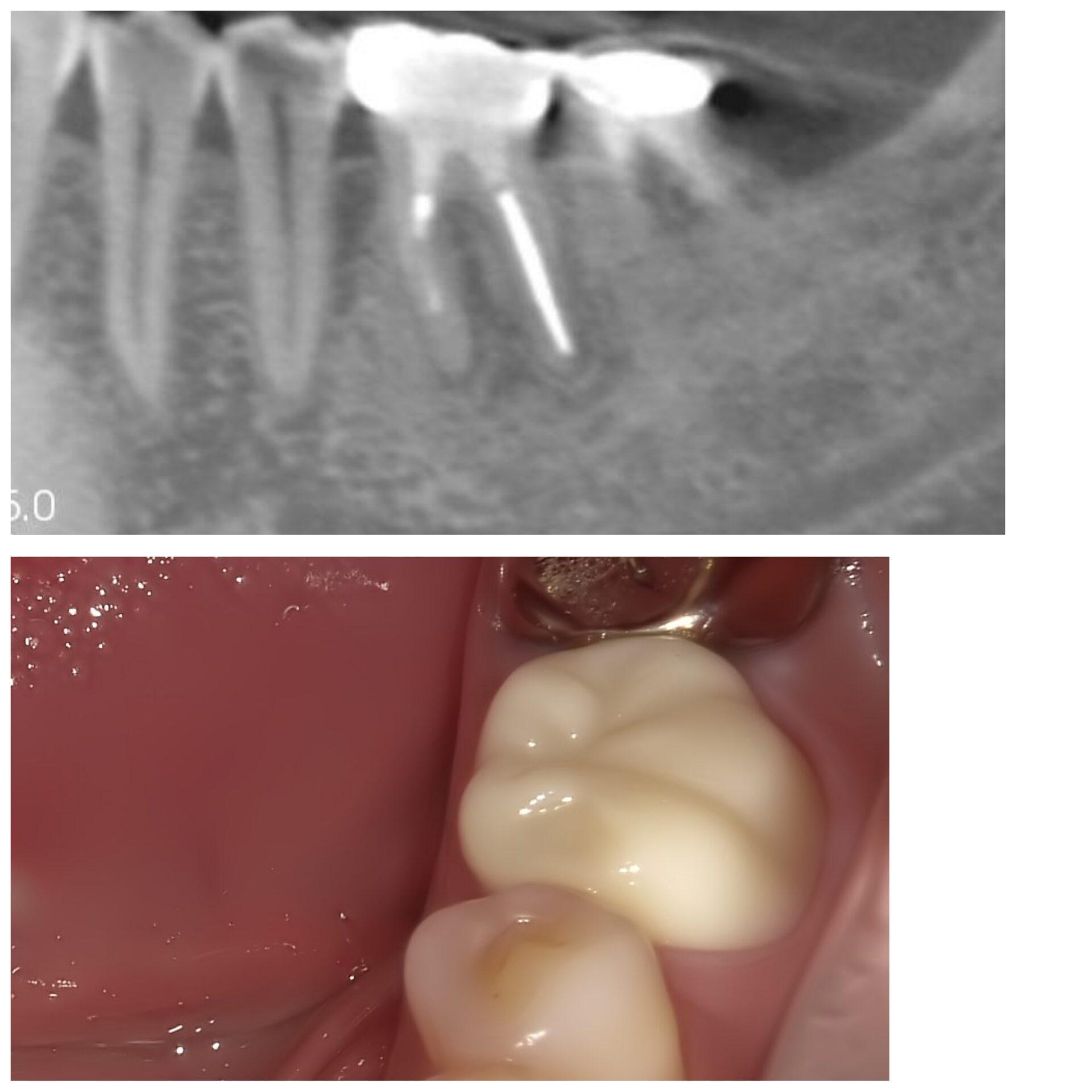 【症例】違和感が残る歯への再根管治療BEFORE