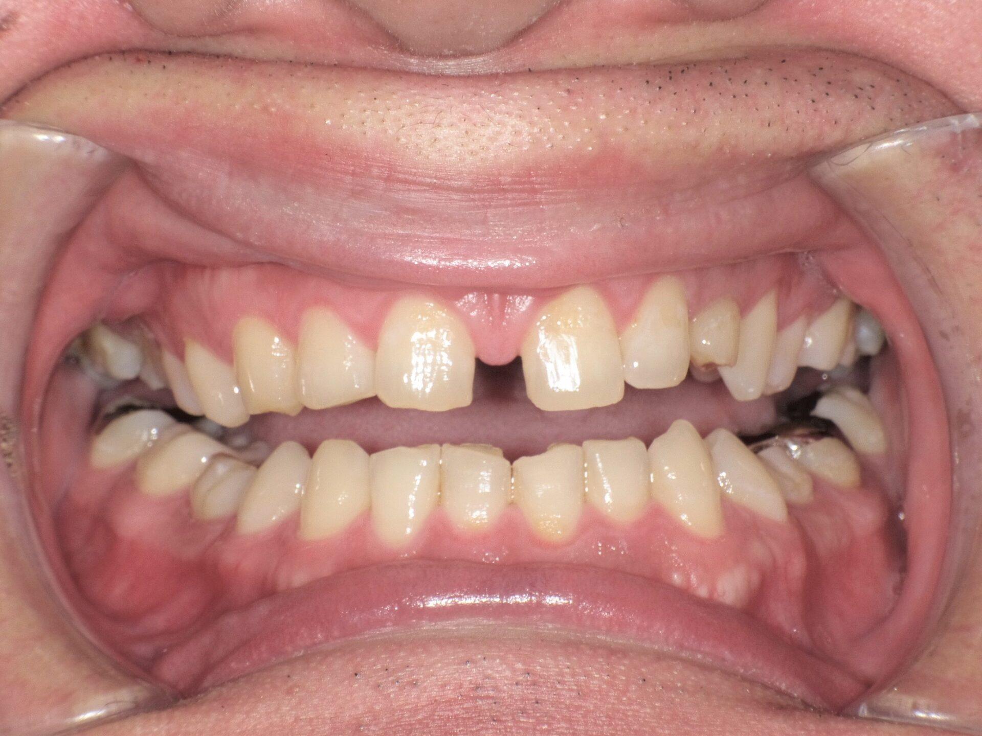 【症例】すきっ歯治療BEFORE