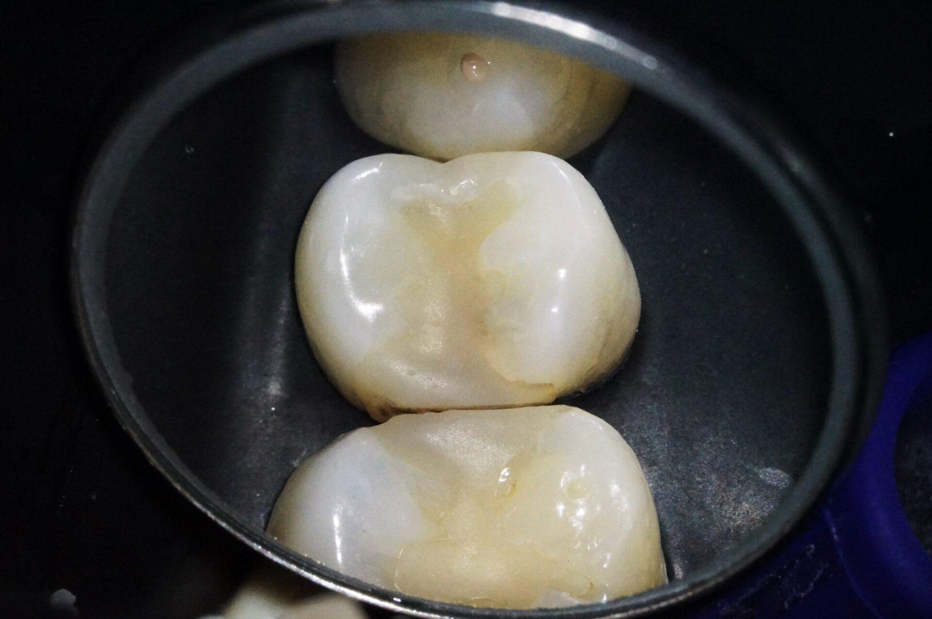 【症例】MTAセメントを使用した歯髄保護治療方法01