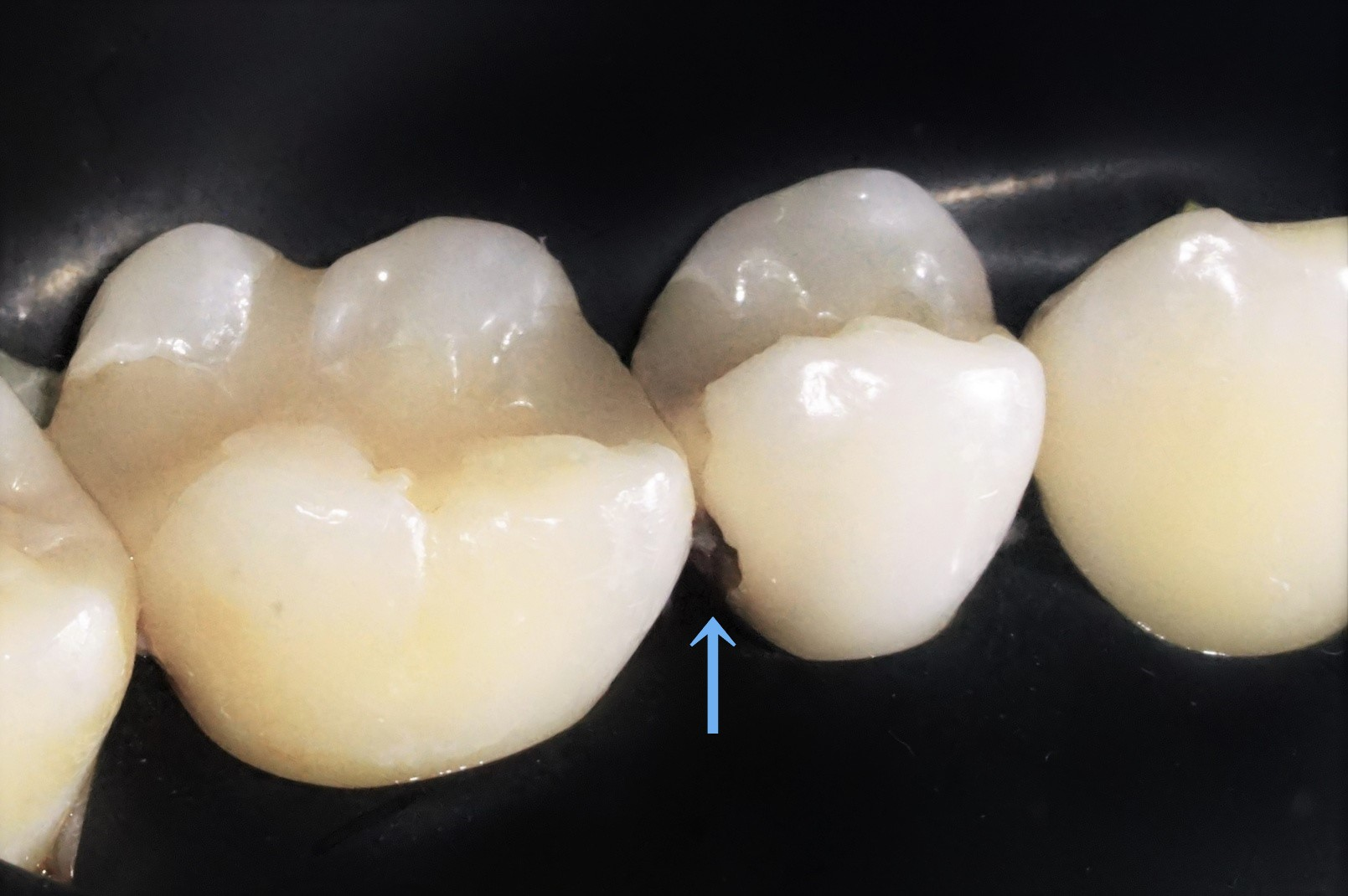 【症例】MTAセメントを使用した歯髄保護治療方法02