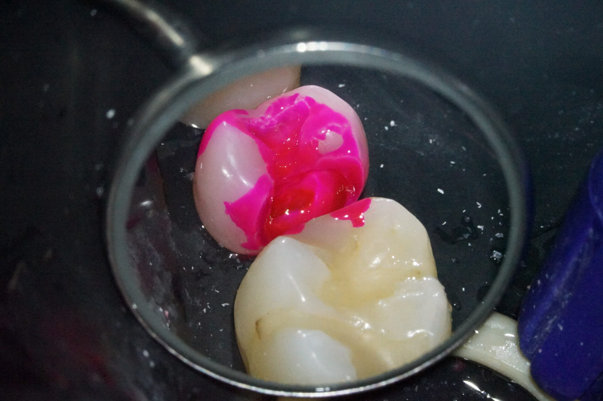 【症例】MTAセメントを使用した歯髄保護治療方法04