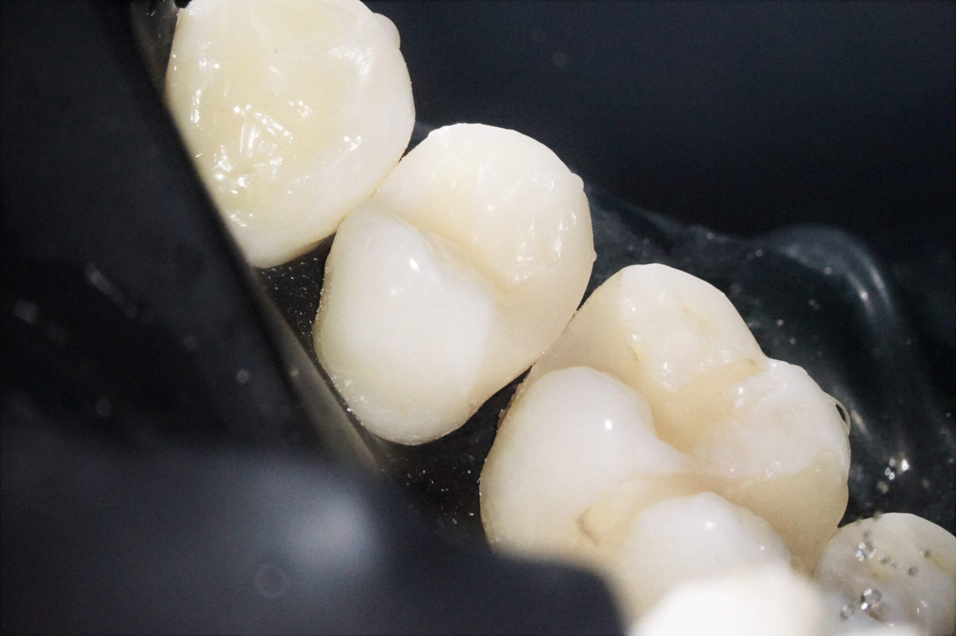【症例】MTAセメントを使用した歯髄保護治療方法13