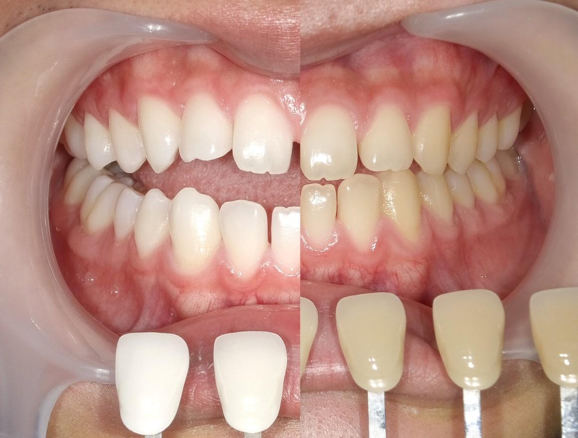 【症例】ホワイトニング+すきっ歯治療 1治療方法07