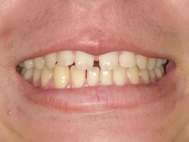 【症例】ホワイトニング+すきっ歯治療 1BEFORE