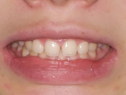 【症例】ホワイトニング+すきっ歯治療 2BEFORE