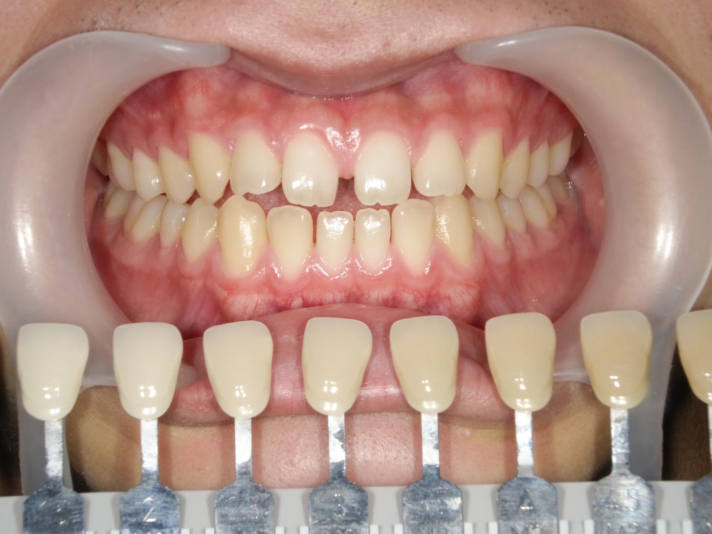 【症例】ホワイトニング+すきっ歯治療 1治療方法02