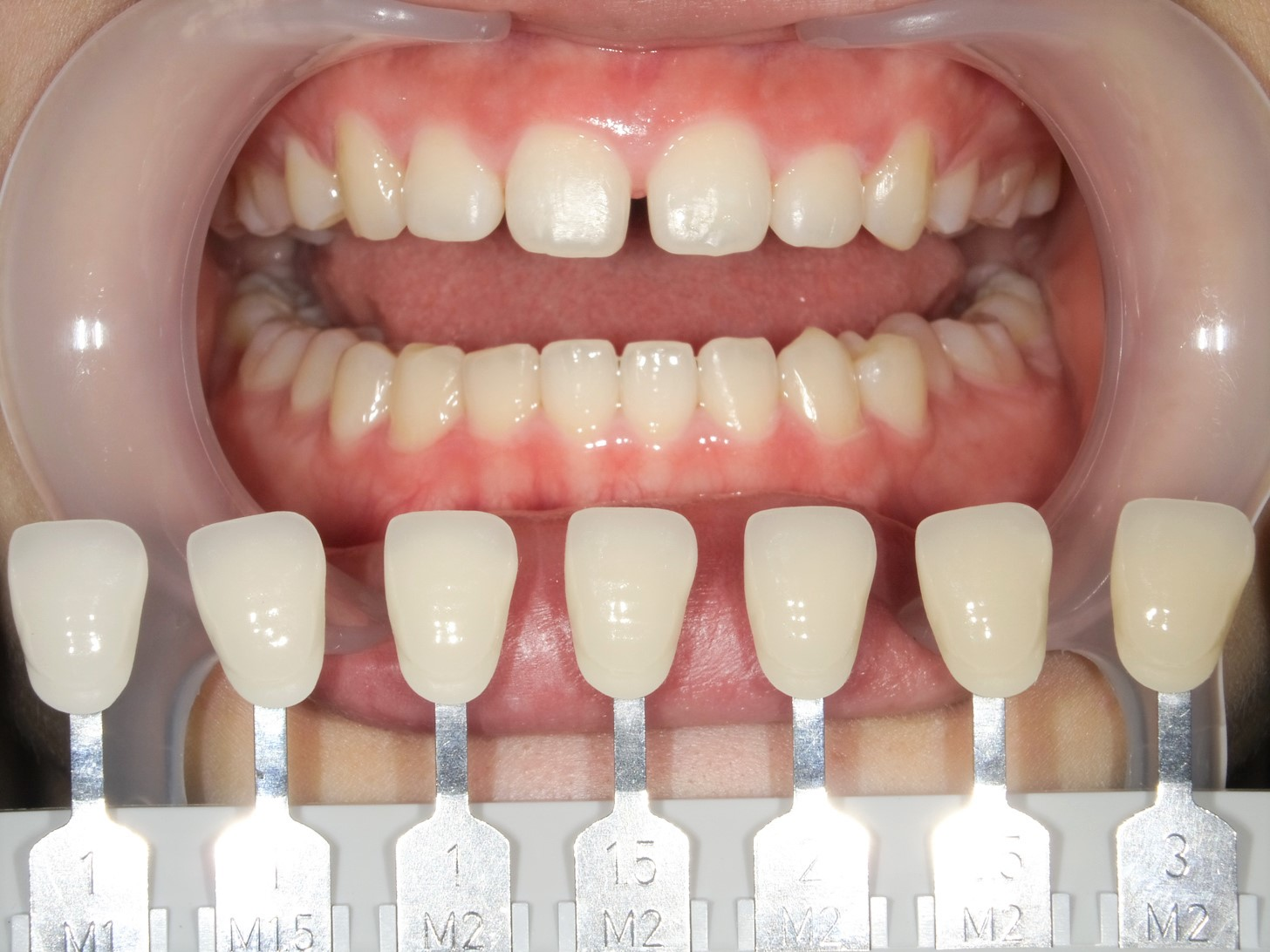 【症例】ホワイトニング+すきっ歯治療 2治療方法04