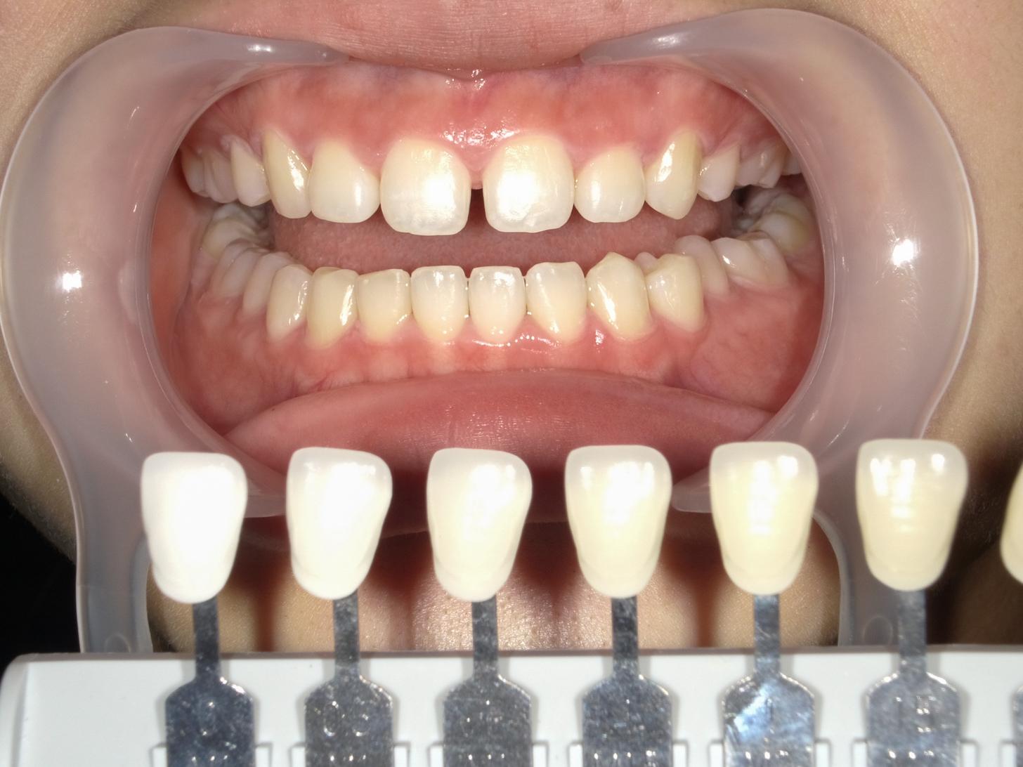 【症例】ホワイトニング+すきっ歯治療 2治療方法05