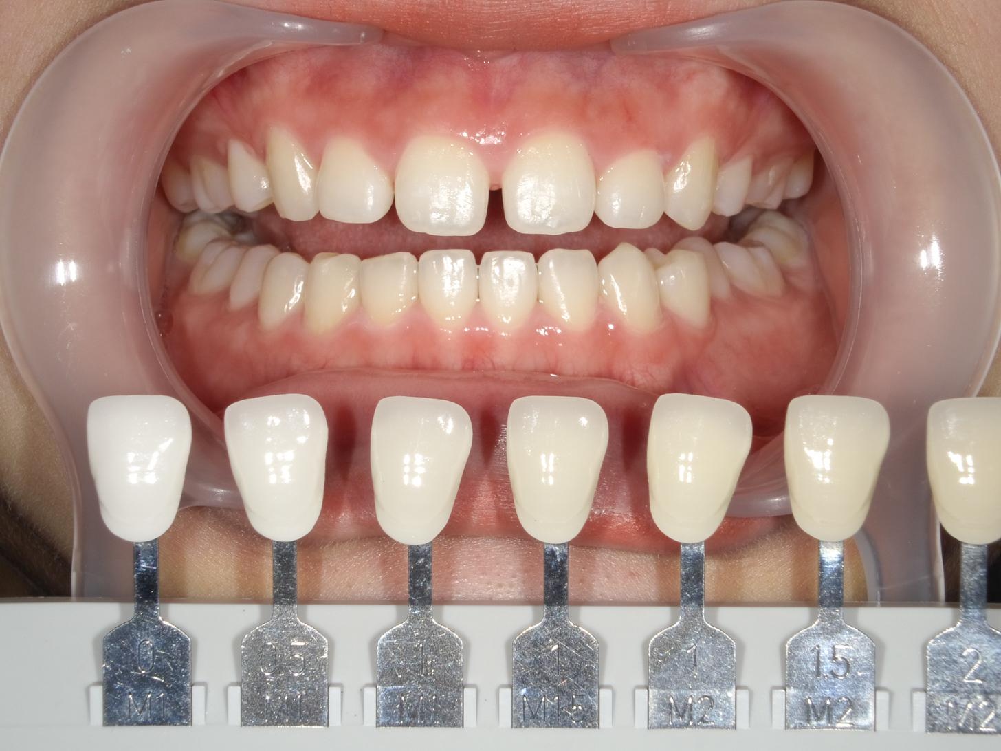 【症例】ホワイトニング+すきっ歯治療 2治療方法06