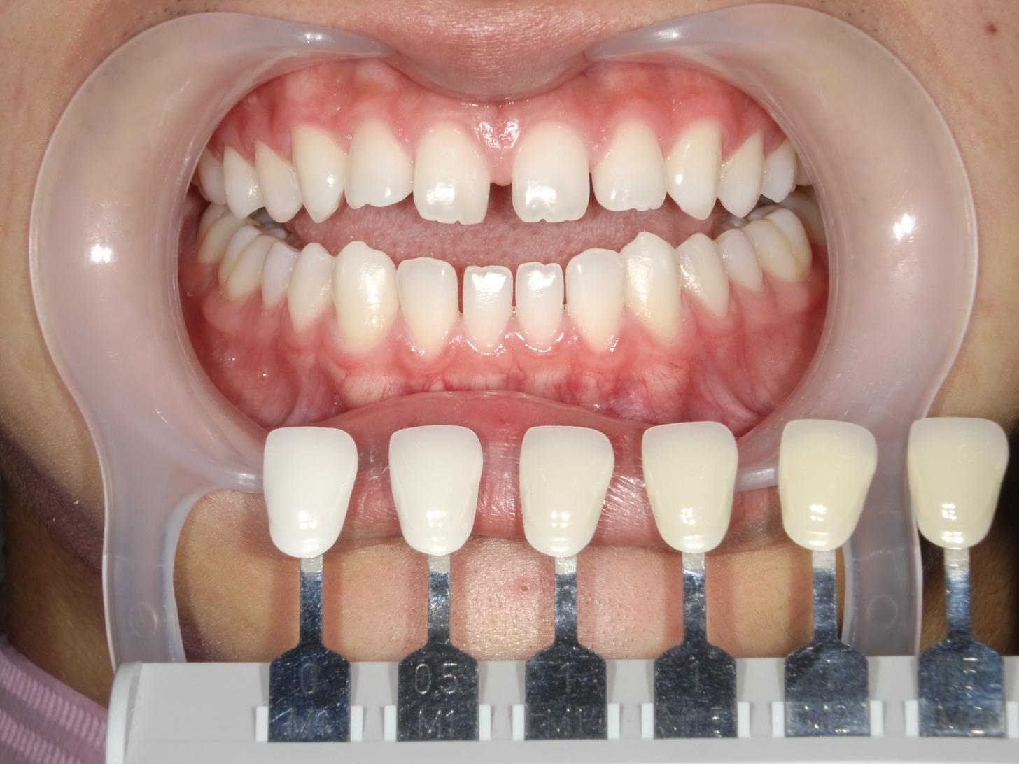 【症例】ホワイトニング+すきっ歯治療 1治療方法06