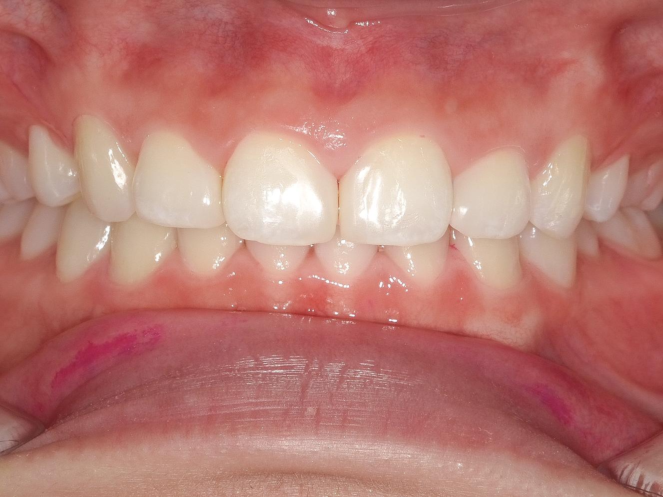 【症例】ホワイトニング+すきっ歯治療 2治療方法08