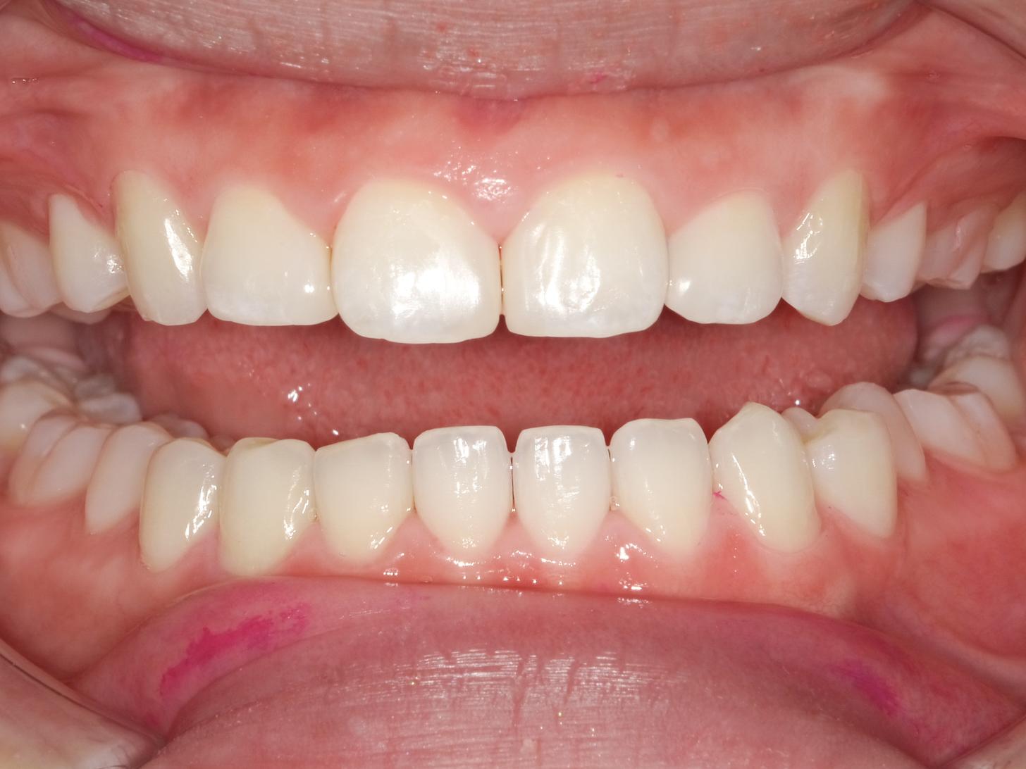 【症例】ホワイトニング+すきっ歯治療 2治療方法07