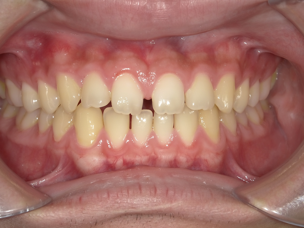 【症例】ホワイトニング+すきっ歯治療 1治療方法01