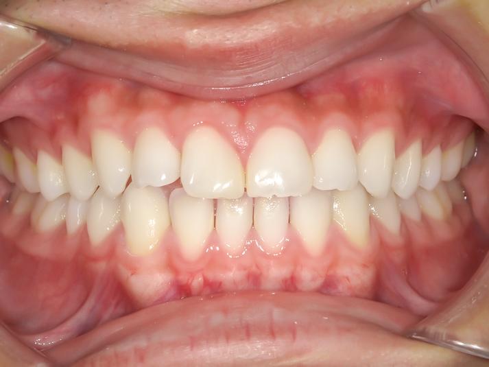 【症例】ホワイトニング+すきっ歯治療 1治療方法08