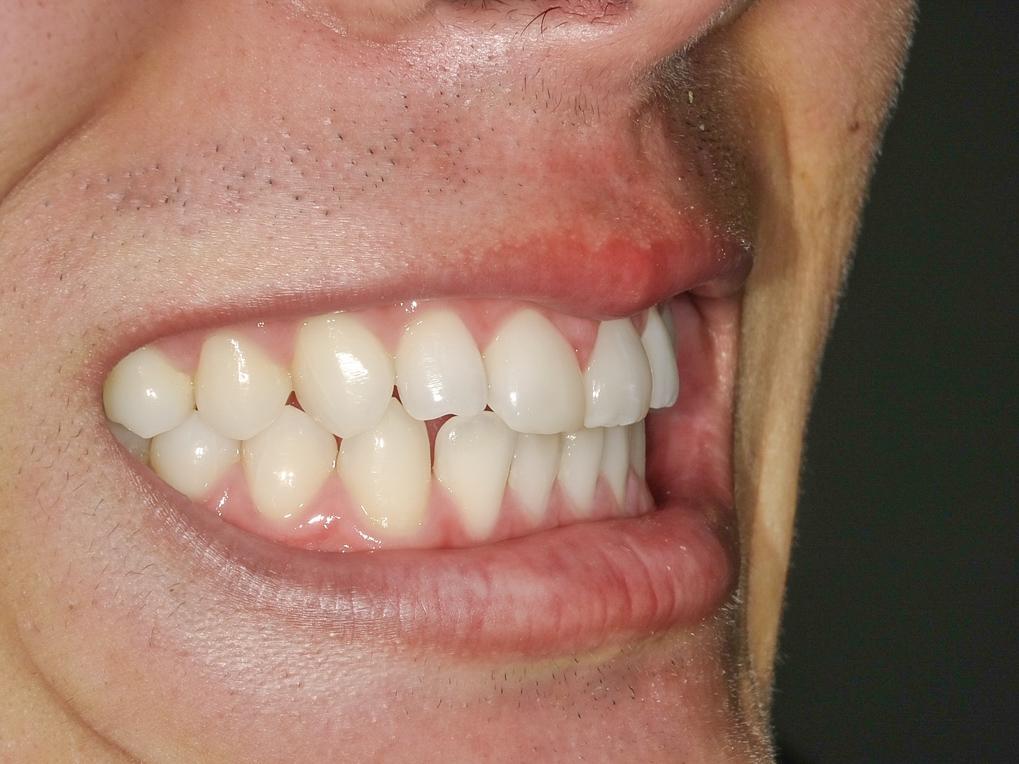 【症例】ホワイトニング+すきっ歯治療 1治療方法09