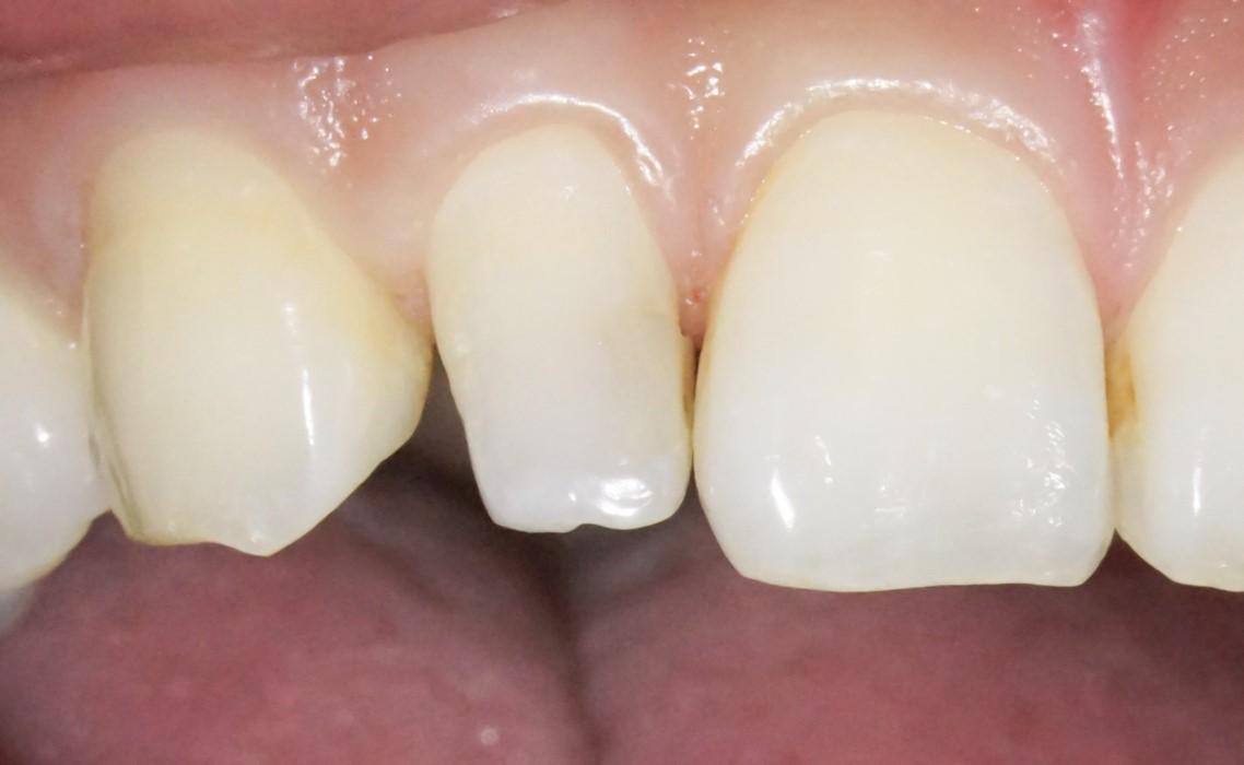 【症例】部分矯正+ホワイトニング+すきっ歯治療 治療方法05