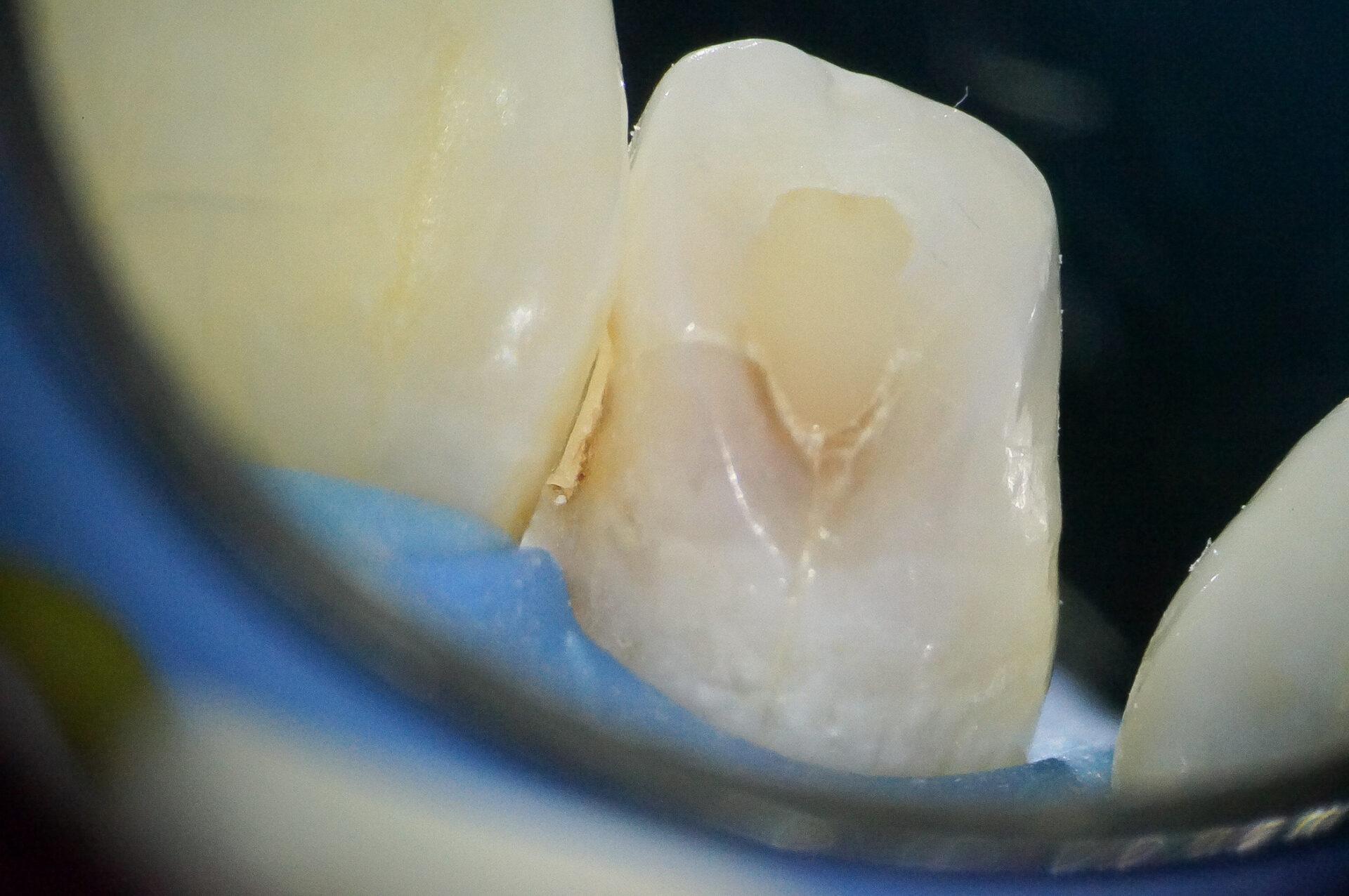 【症例】部分矯正+ホワイトニング+すきっ歯治療 治療方法07