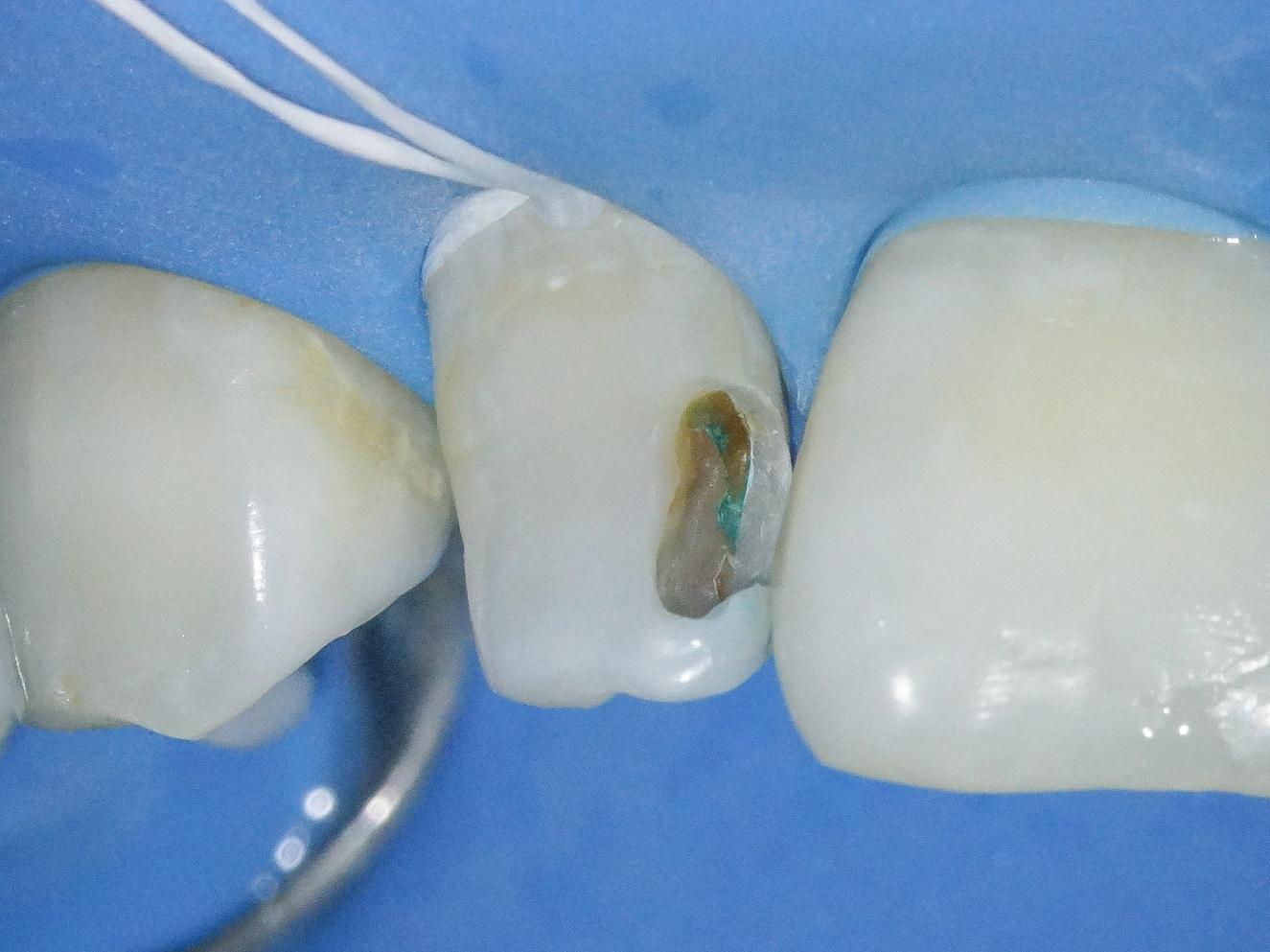 【症例】部分矯正+ホワイトニング+すきっ歯治療 治療方法08