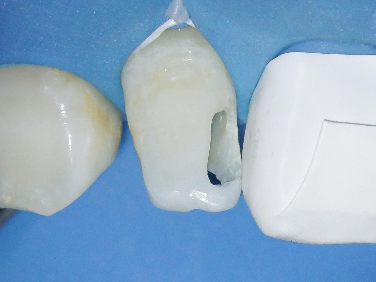 【症例】部分矯正+ホワイトニング+すきっ歯治療 治療方法13