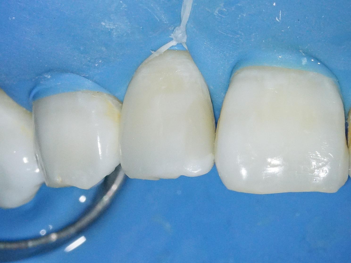 【症例】部分矯正+ホワイトニング+すきっ歯治療 治療方法18