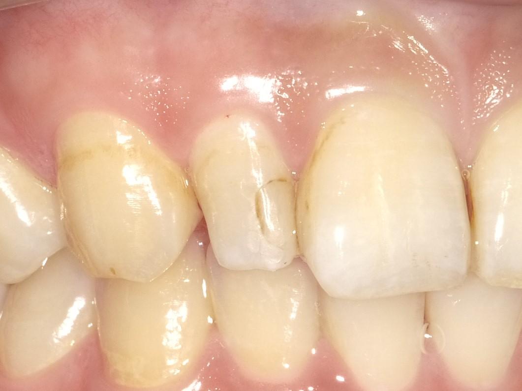 【症例】部分矯正+ホワイトニング+すきっ歯治療 BEFORE