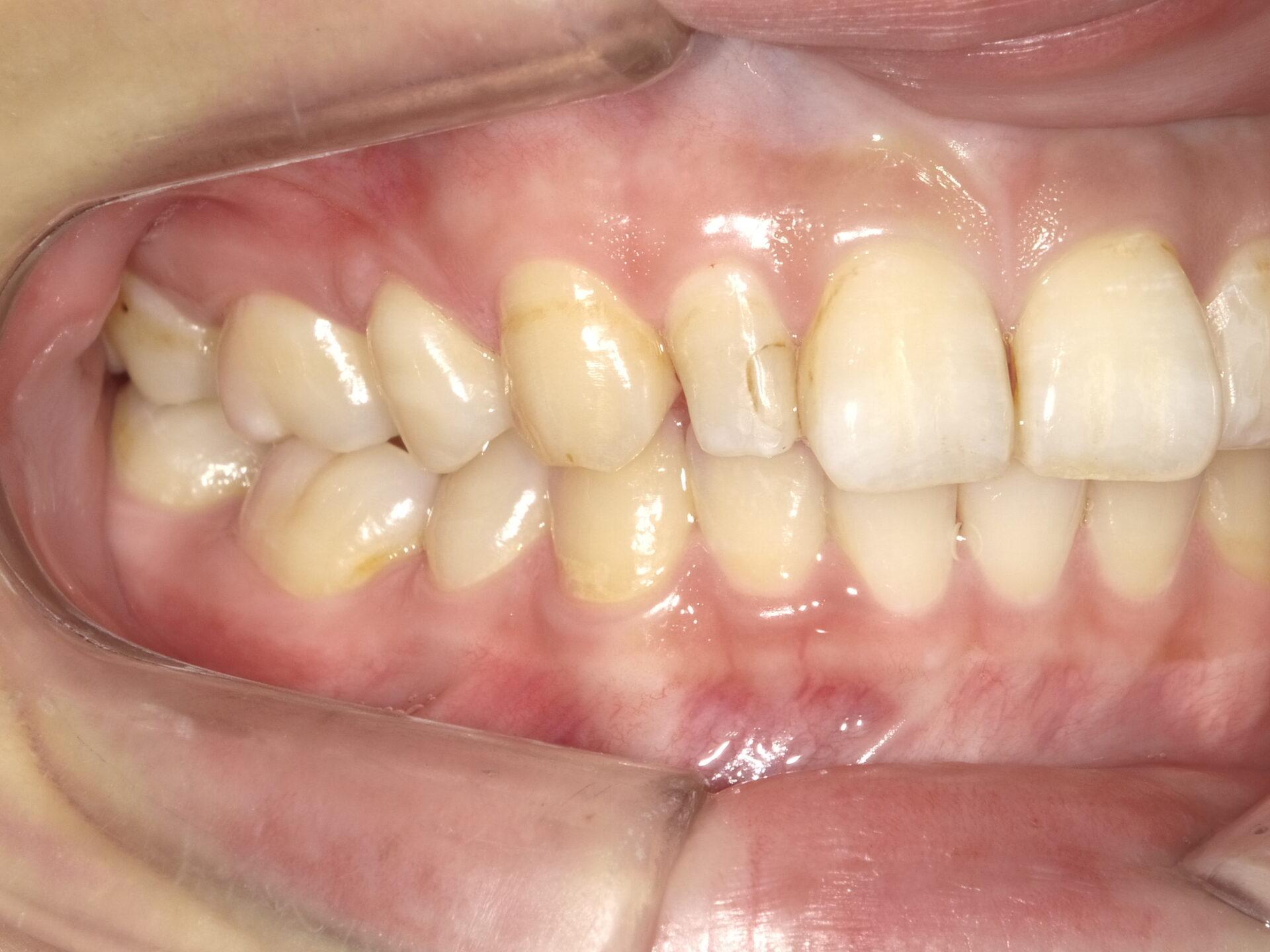 【症例】部分矯正+ホワイトニング+すきっ歯治療 治療方法01