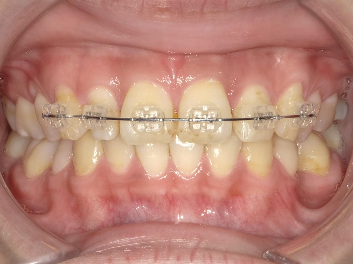 【症例】部分矯正+ホワイトニング+すきっ歯治療 治療方法02
