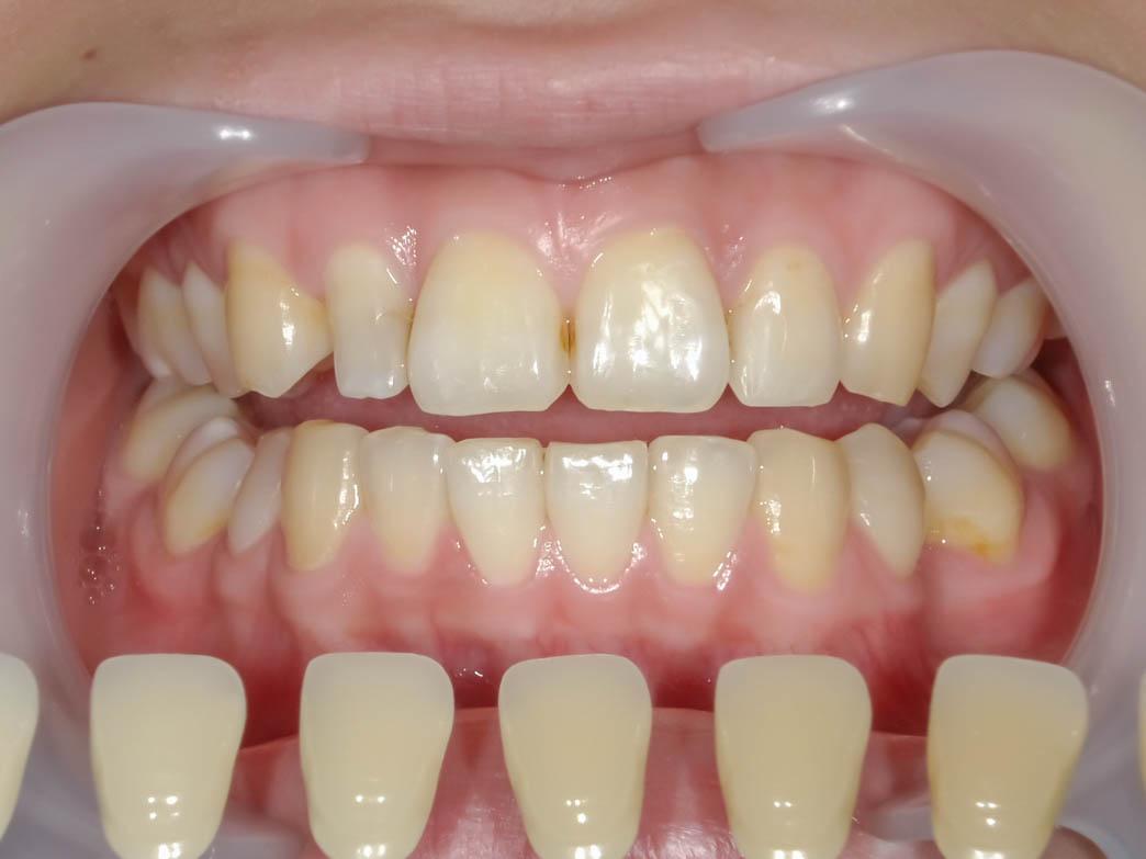【症例】部分矯正+ホワイトニング+すきっ歯治療 治療方法03