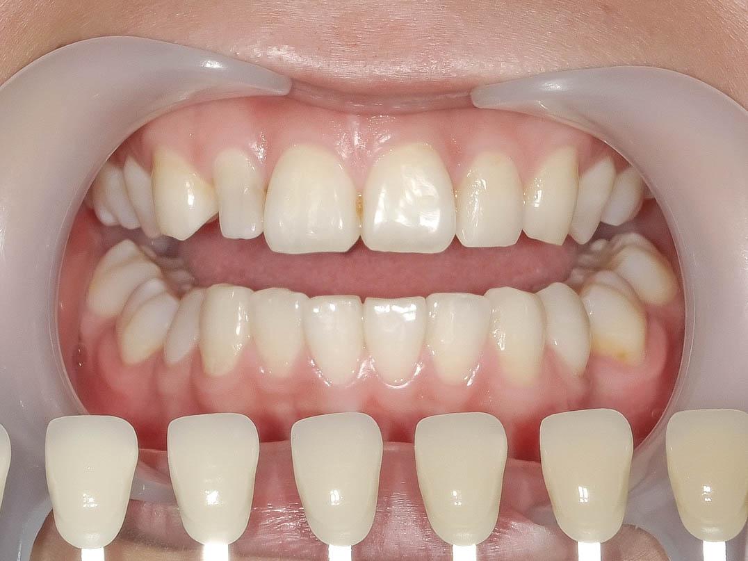 【症例】部分矯正+ホワイトニング+すきっ歯治療 治療方法04