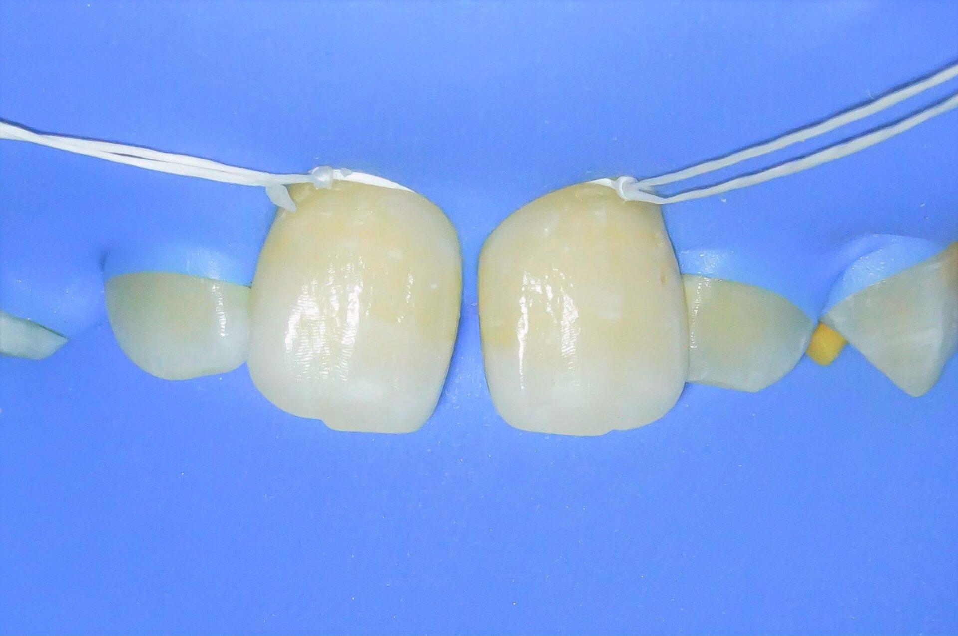 【症例】ホワイトニング+すきっ歯治療 2治療方法02