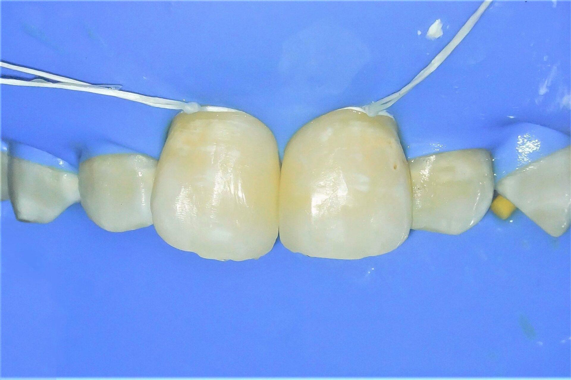 【症例】ホワイトニング+すきっ歯治療 2治療方法03